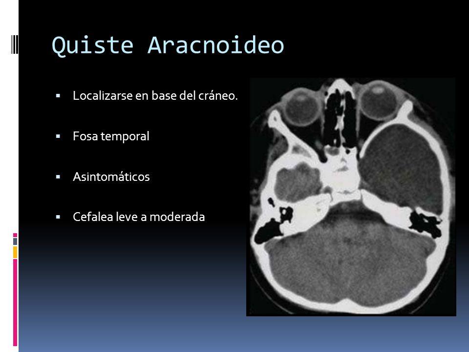 Quiste Aracnoideo Localizarse en base del cráneo. Fosa temporal Asintomáticos Cefalea leve a moderada