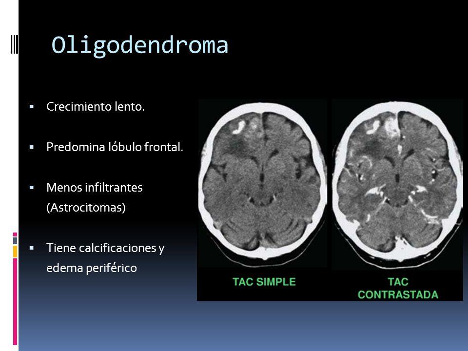 Oligodendroma Crecimiento lento. Predomina lóbulo frontal. Menos infiltrantes (Astrocitomas) Tiene calcificaciones y edema periférico