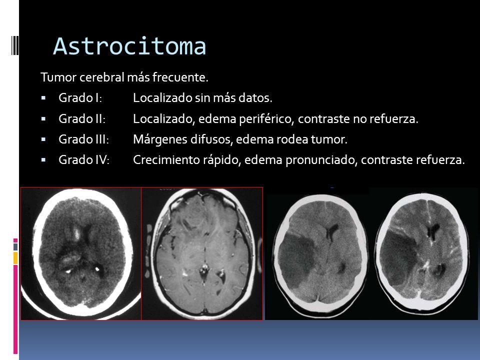 Astrocitoma Tumor cerebral más frecuente. Grado I: Localizado sin más datos. Grado II: Localizado, edema periférico, contraste no refuerza. Grado III: