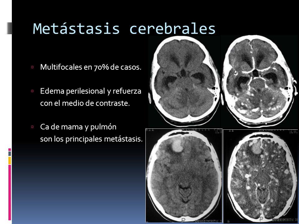Metástasis cerebrales Multifocales en 70% de casos. Edema perilesional y refuerza con el medio de contraste. Ca de mama y pulmón son los principales m