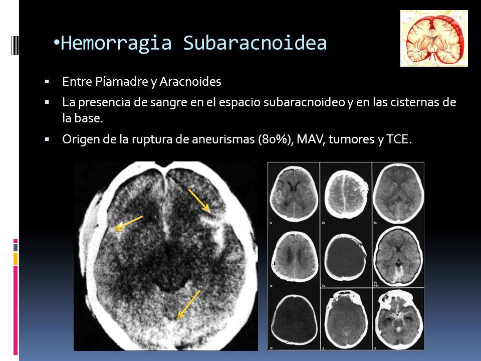 Hemorragia Subaracnoidea Entre Píamadre y Aracnoides La presencia de sangre en el espacio subaracnoideo y en las cisternas de la base. Origen de la ru