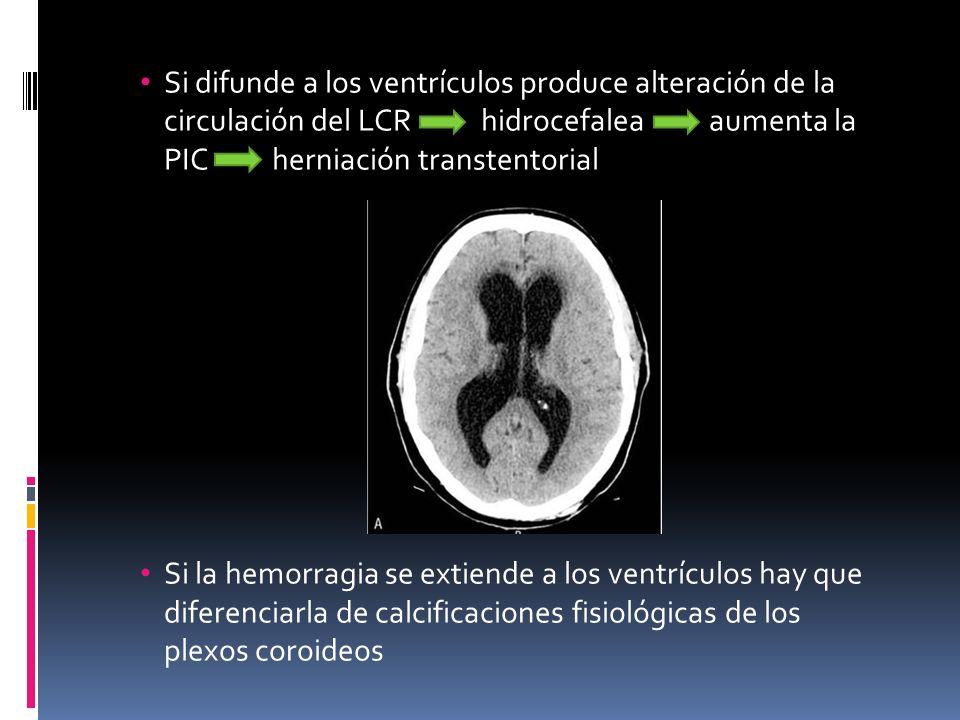 Si difunde a los ventrículos produce alteración de la circulación del LCR hidrocefalea aumenta la PIC herniación transtentorial Si la hemorragia se ex