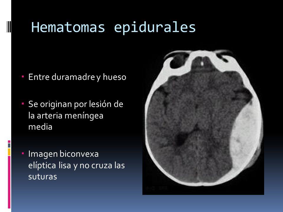 Hematomas epidurales Entre duramadre y hueso Se originan por lesión de la arteria meníngea media Imagen biconvexa elíptica lisa y no cruza las suturas