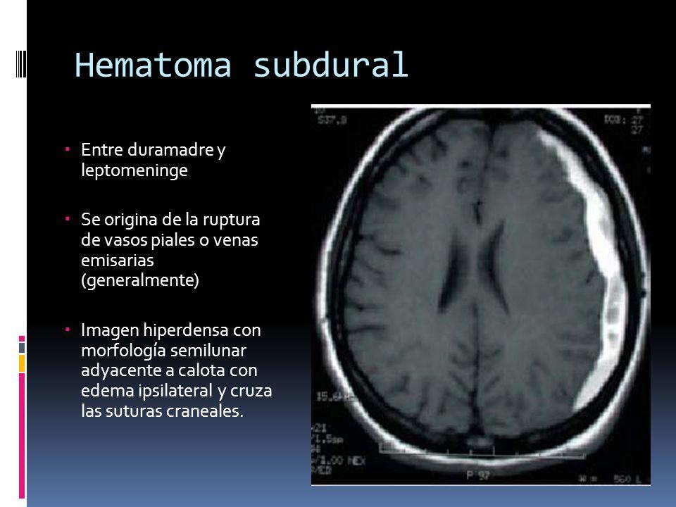 Hematoma subdural Entre duramadre y leptomeninge Se origina de la ruptura de vasos piales o venas emisarias (generalmente) Imagen hiperdensa con morfo