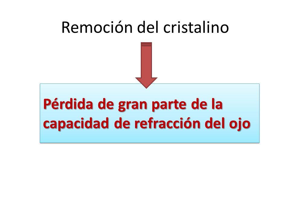 Remoción del cristalino Pérdida de gran parte de la capacidad de refracción del ojo