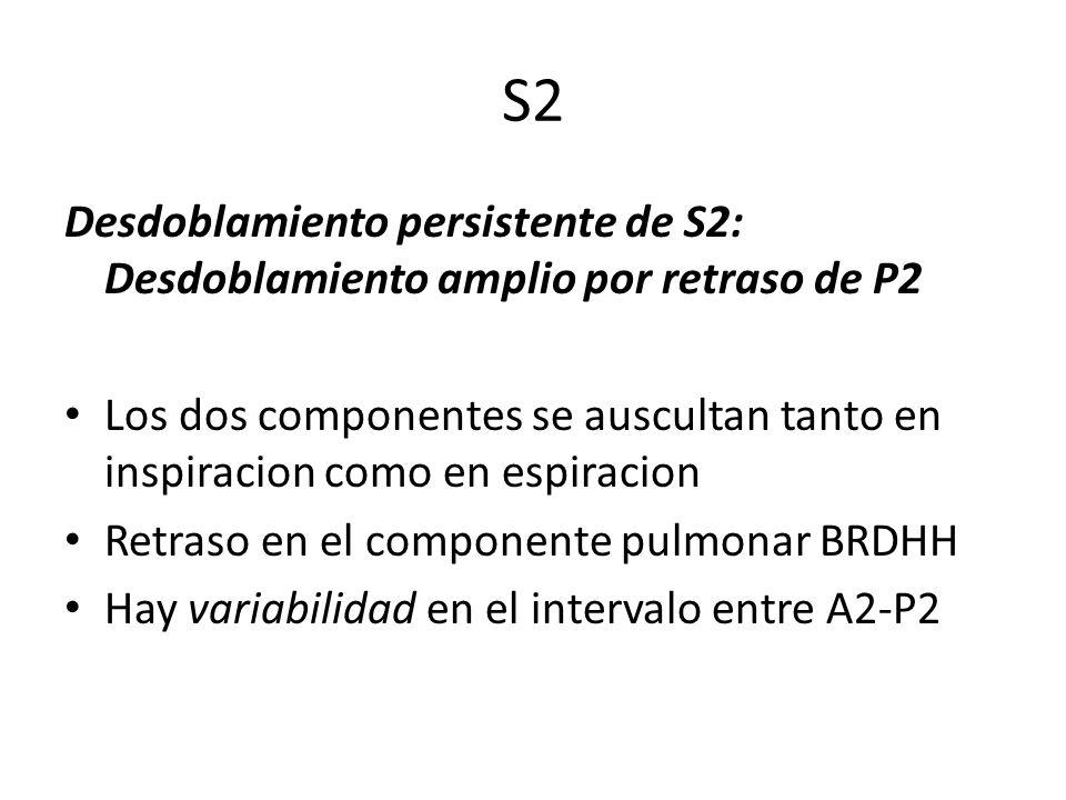 S2 Desdoblamiento persistente de S2: Desdoblamiento amplio por retraso de P2 Los dos componentes se auscultan tanto en inspiracion como en espiracion