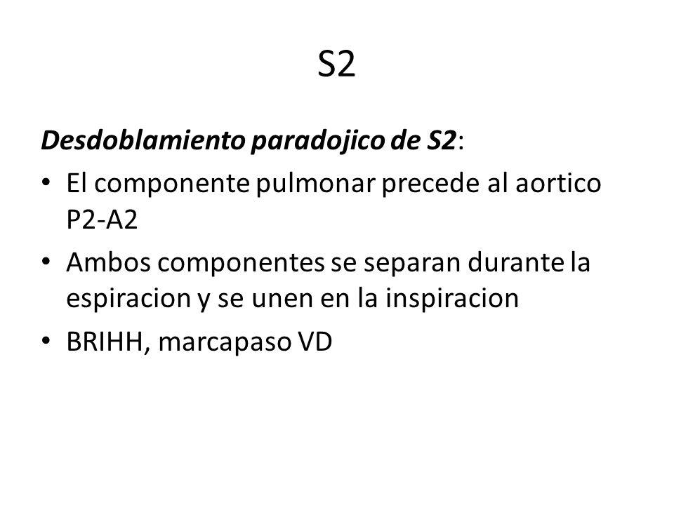 S2 Desdoblamiento paradojico de S2: El componente pulmonar precede al aortico P2-A2 Ambos componentes se separan durante la espiracion y se unen en la