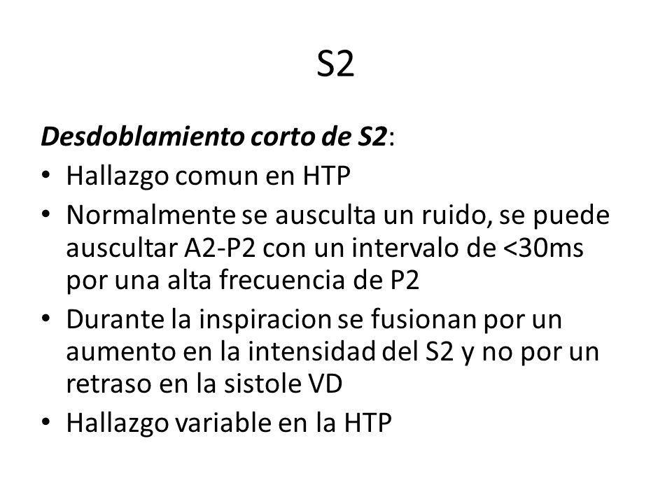 S2 Desdoblamiento corto de S2: Hallazgo comun en HTP Normalmente se ausculta un ruido, se puede auscultar A2-P2 con un intervalo de <30ms por una alta