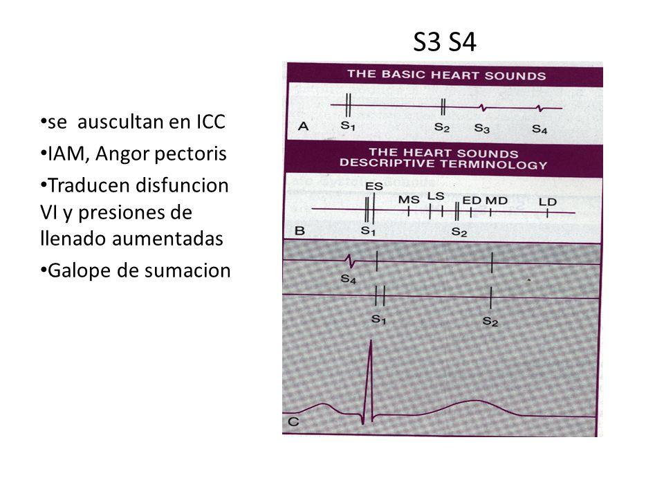 S3 S4 se auscultan en ICC IAM, Angor pectoris Traducen disfuncion VI y presiones de llenado aumentadas Galope de sumacion