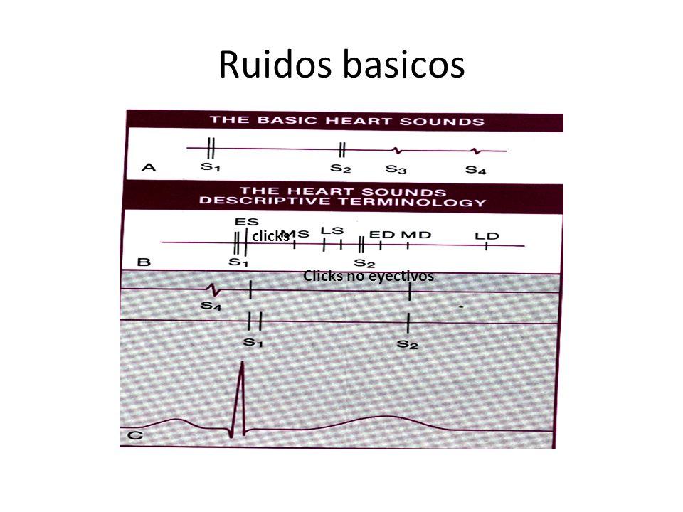 S1 Cierre de las valvulas AV 2 componentes : M1, T1 M1: mejor en el apex cardiaco T2 : borde EI y casi no en el apex S1 se da por: por desaceleracion de la sangre contra valvas cerradas tensas