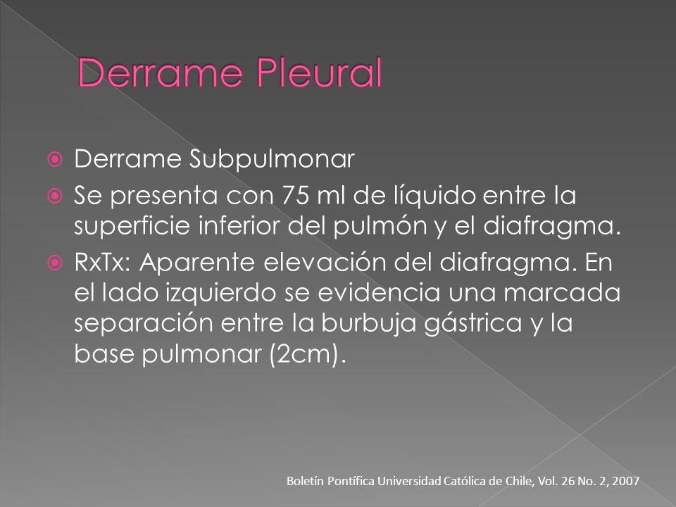 Derrame Subpulmonar Se presenta con 75 ml de líquido entre la superficie inferior del pulmón y el diafragma. RxTx: Aparente elevación del diafragma. E