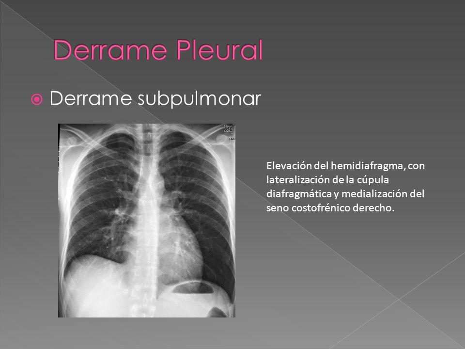 Derrame subpulmonar Elevación del hemidiafragma, con lateralización de la cúpula diafragmática y medialización del seno costofrénico derecho.
