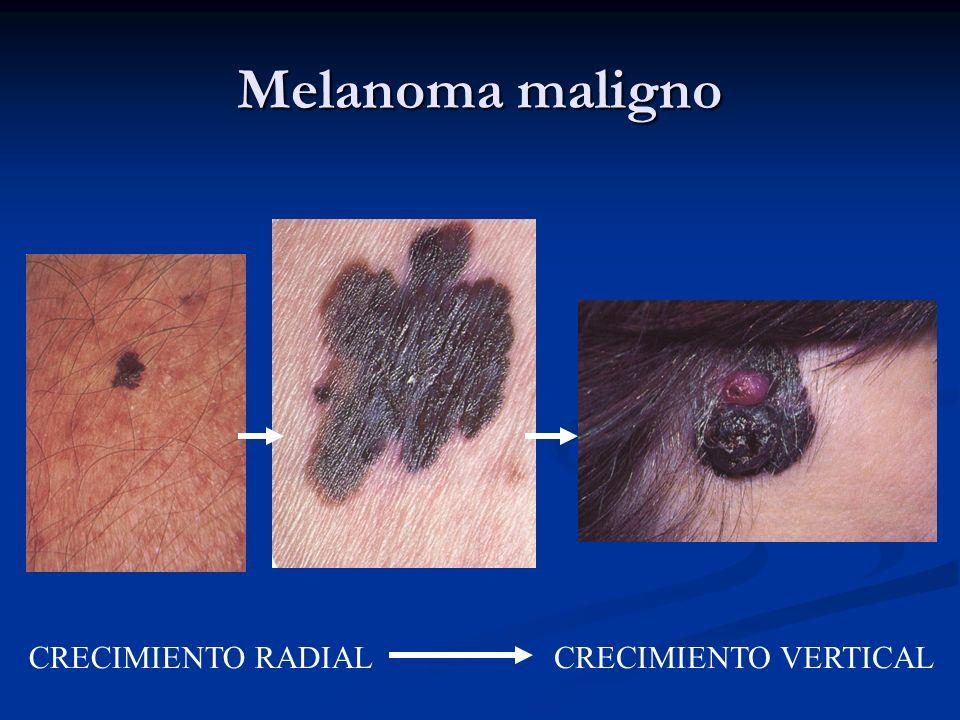 Melanoma maligno CRECIMIENTO RADIALCRECIMIENTO VERTICAL
