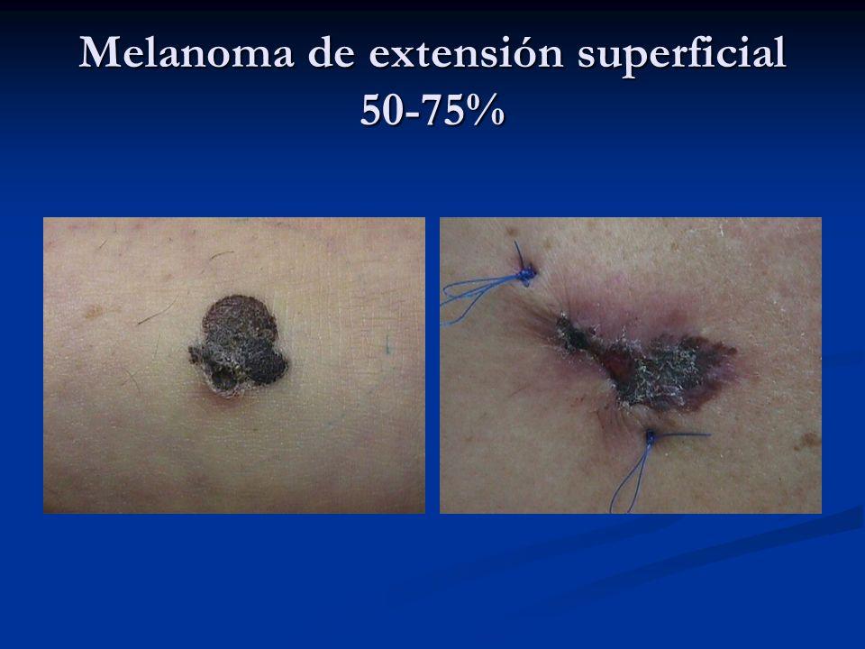 Melanoma de extensión superficial 50-75%