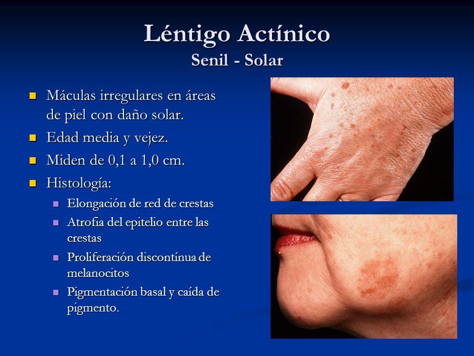 Léntigo Actínico Senil - Solar Máculas irregulares en áreas de piel con daño solar. Máculas irregulares en áreas de piel con daño solar. Edad media y
