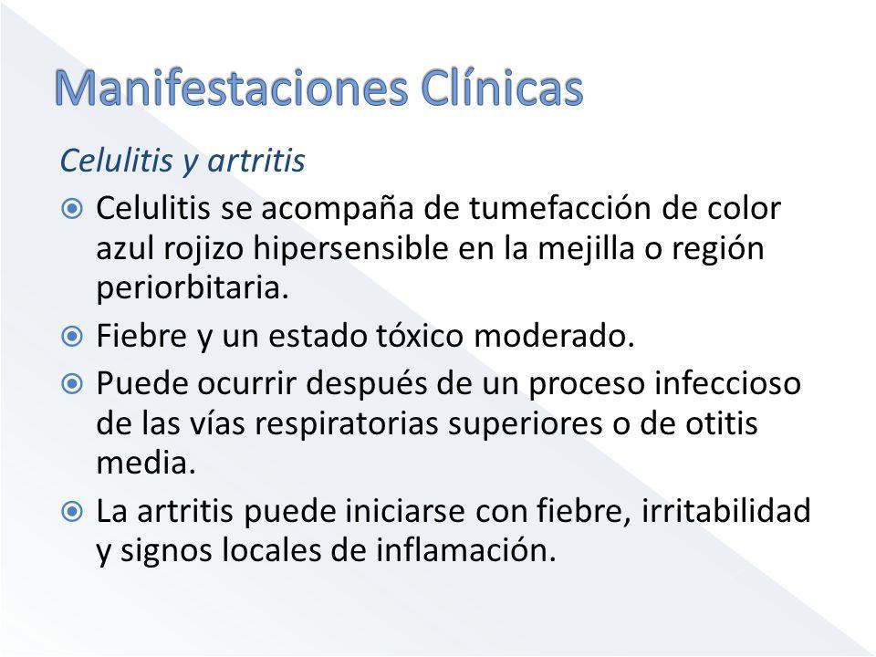 Celulitis y artritis Celulitis se acompaña de tumefacción de color azul rojizo hipersensible en la mejilla o región periorbitaria. Fiebre y un estado