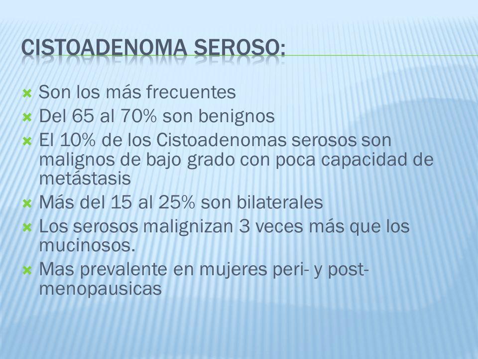 Son los más frecuentes Del 65 al 70% son benignos El 10% de los Cistoadenomas serosos son malignos de bajo grado con poca capacidad de metástasis Más