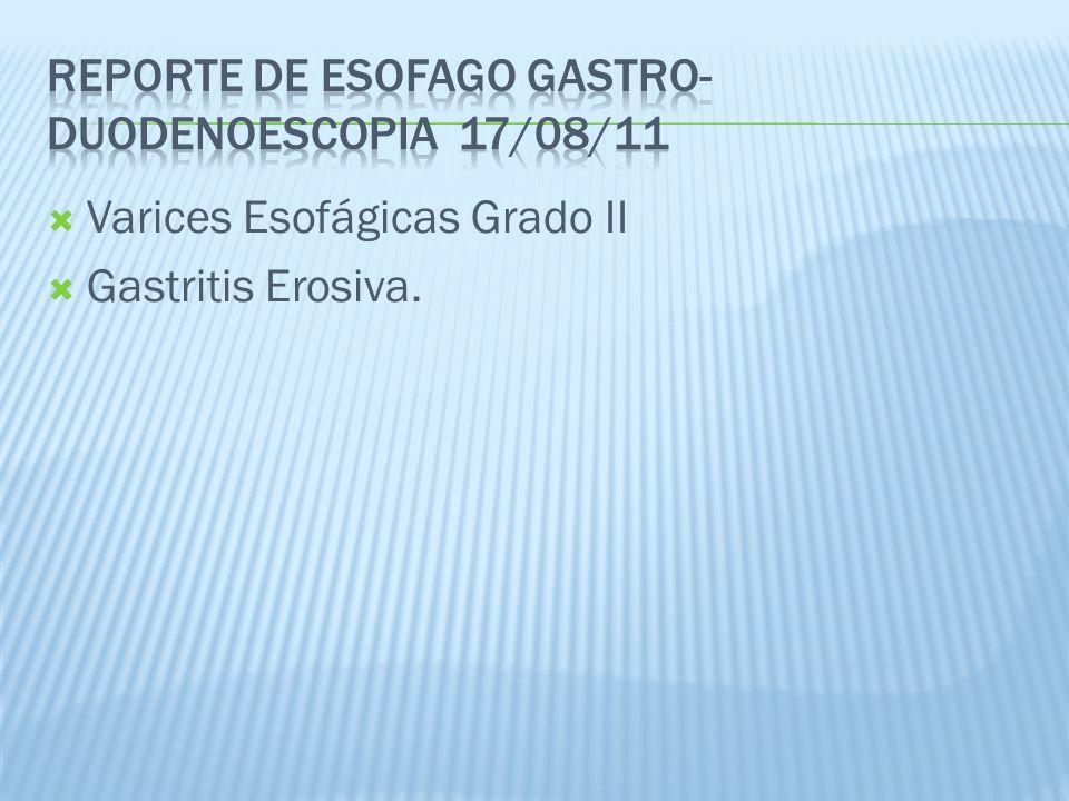 Varices Esofágicas Grado II Gastritis Erosiva.
