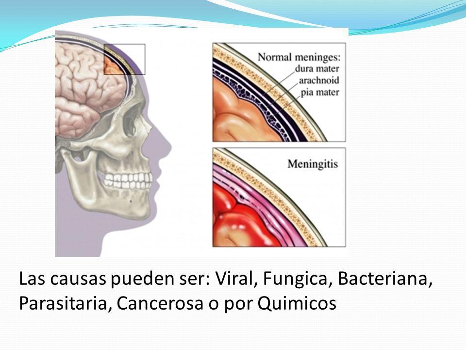 Las causas pueden ser: Viral, Fungica, Bacteriana, Parasitaria, Cancerosa o por Quimicos
