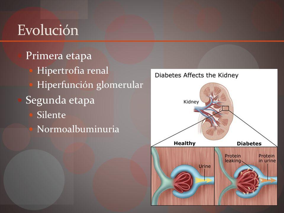 Evolución Tercer etapa Nefropatía incipiente Microalbuminuria Reversible