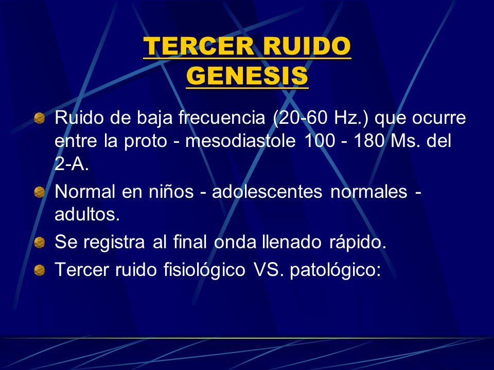 TERCER RUIDO GENESIS Ruido de baja frecuencia (20 60 Hz.) que ocurre entre la proto - mesodiastole 100 180 Ms. del 2 A. Normal en niños adolescentes n