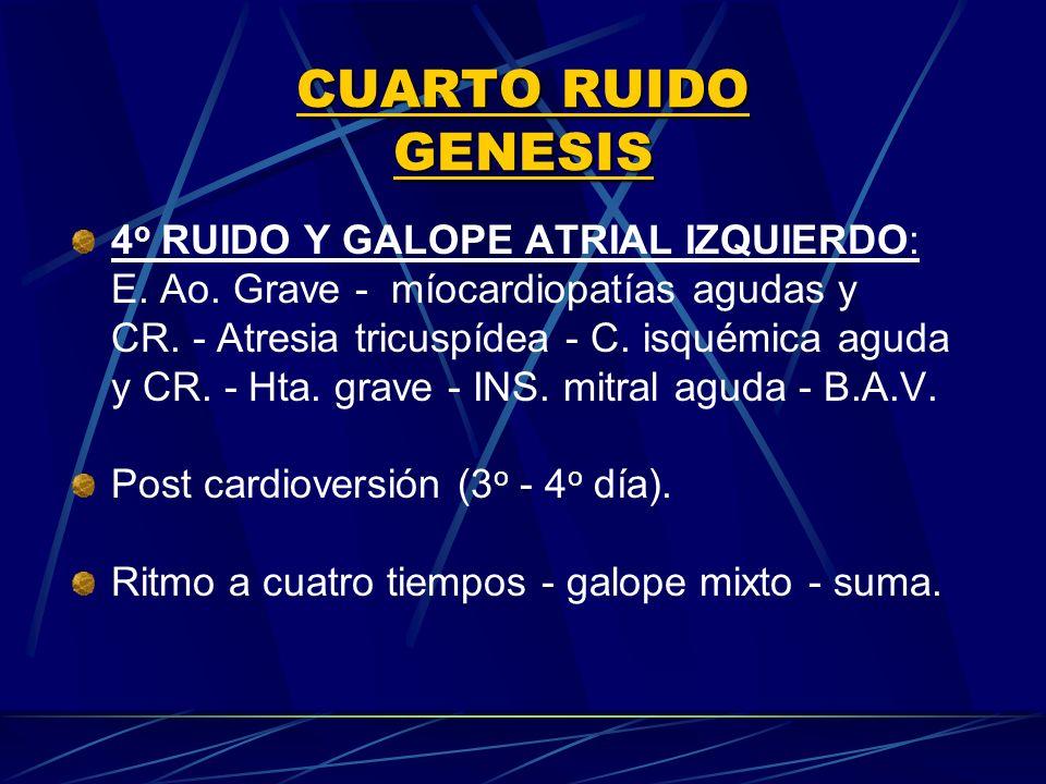 4 o RUIDO Y GALOPE ATRIAL IZQUIERDO: E. Ao. Grave - míocardiopatías agudas y CR. Atresia tricuspídea C. isquémica aguda y CR. - Hta. grave INS. mitral