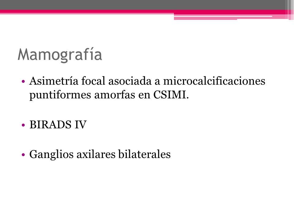 Mamografía Asimetría focal asociada a microcalcificaciones puntiformes amorfas en CSIMI. BIRADS IV Ganglios axilares bilaterales