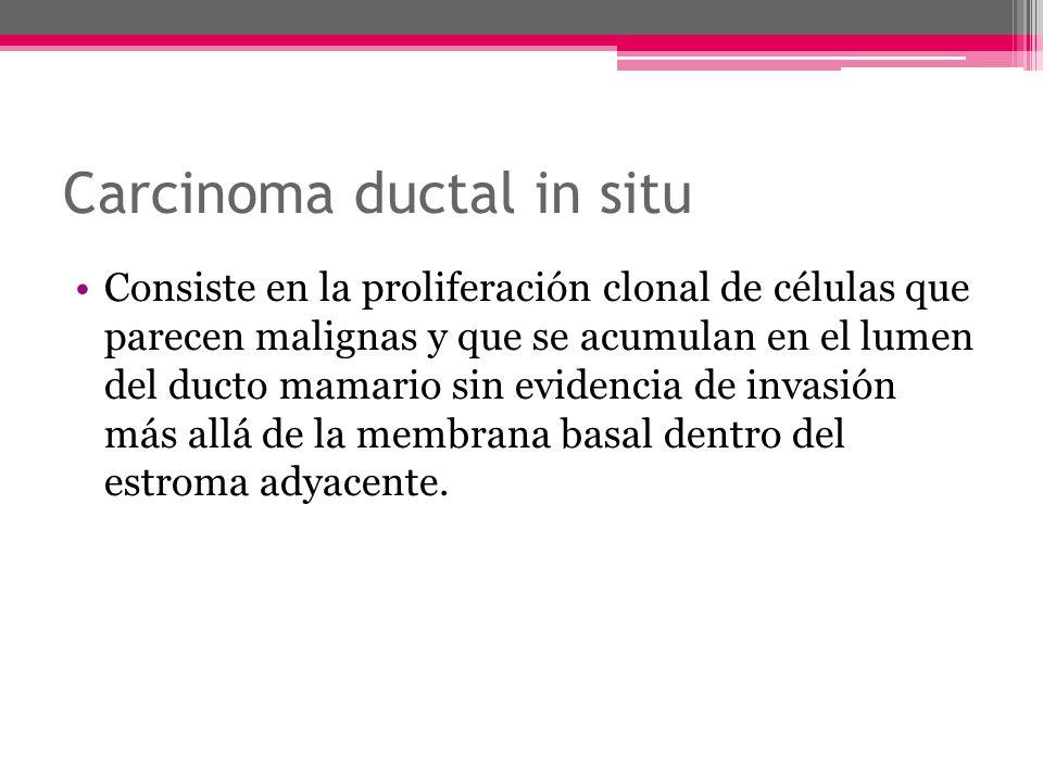 Carcinoma ductal in situ Consiste en la proliferación clonal de células que parecen malignas y que se acumulan en el lumen del ducto mamario sin evide