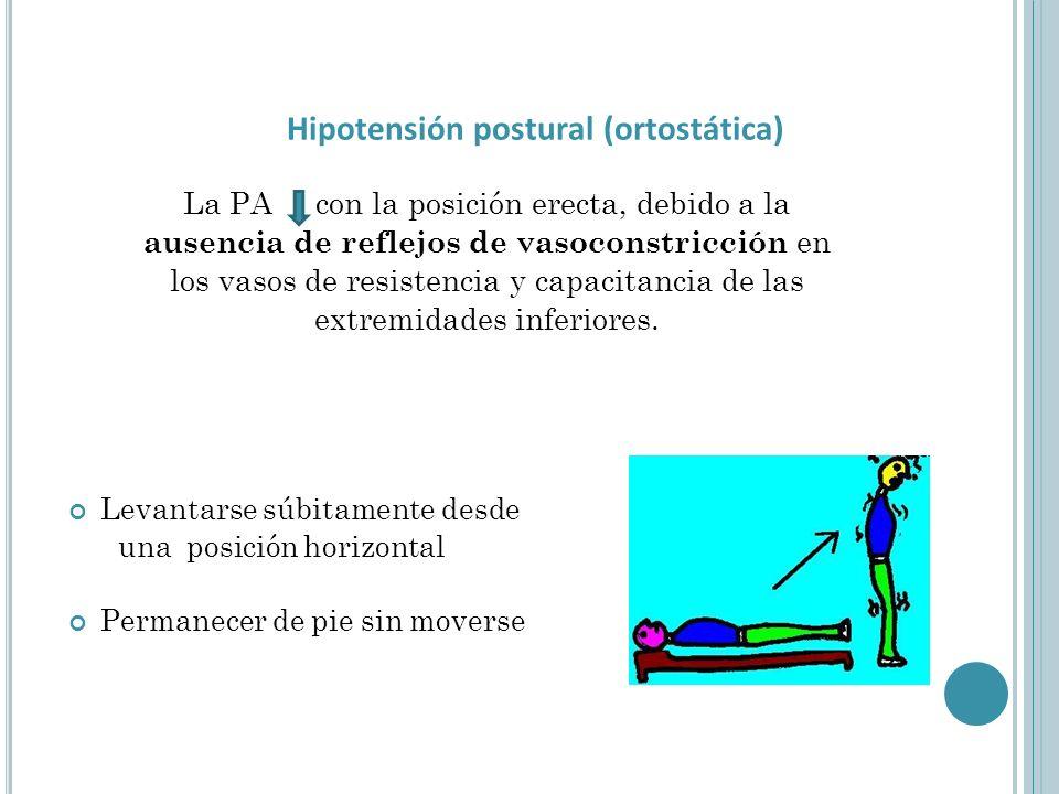 La PA con la posición erecta, debido a la ausencia de reflejos de vasoconstricción en los vasos de resistencia y capacitancia de las extremidades inferiores.