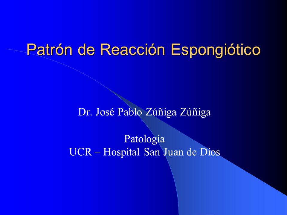 Espongiosis Presencia de edema intraepidérmico e intercelular Amplios espacios intercelulares Elongación de los puentes intercelula- res Puede haber vesículas intraepidérmi-cas