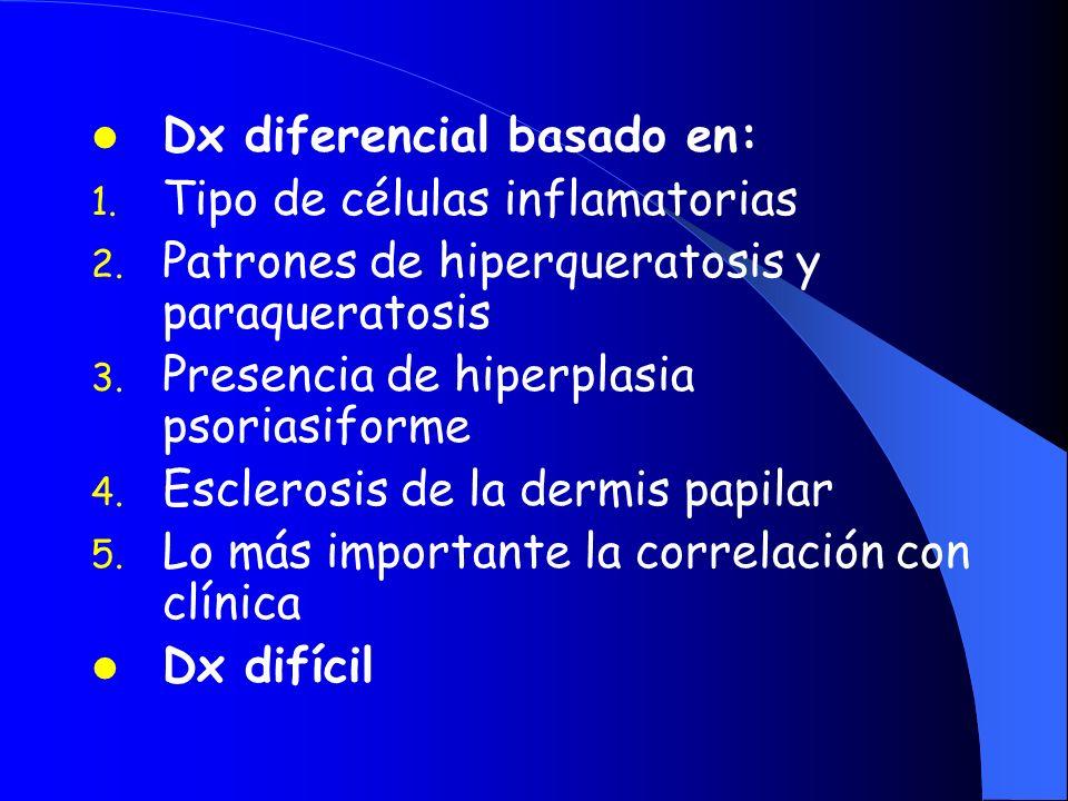 Dx diferencial basado en: 1. Tipo de células inflamatorias 2. Patrones de hiperqueratosis y paraqueratosis 3. Presencia de hiperplasia psoriasiforme 4