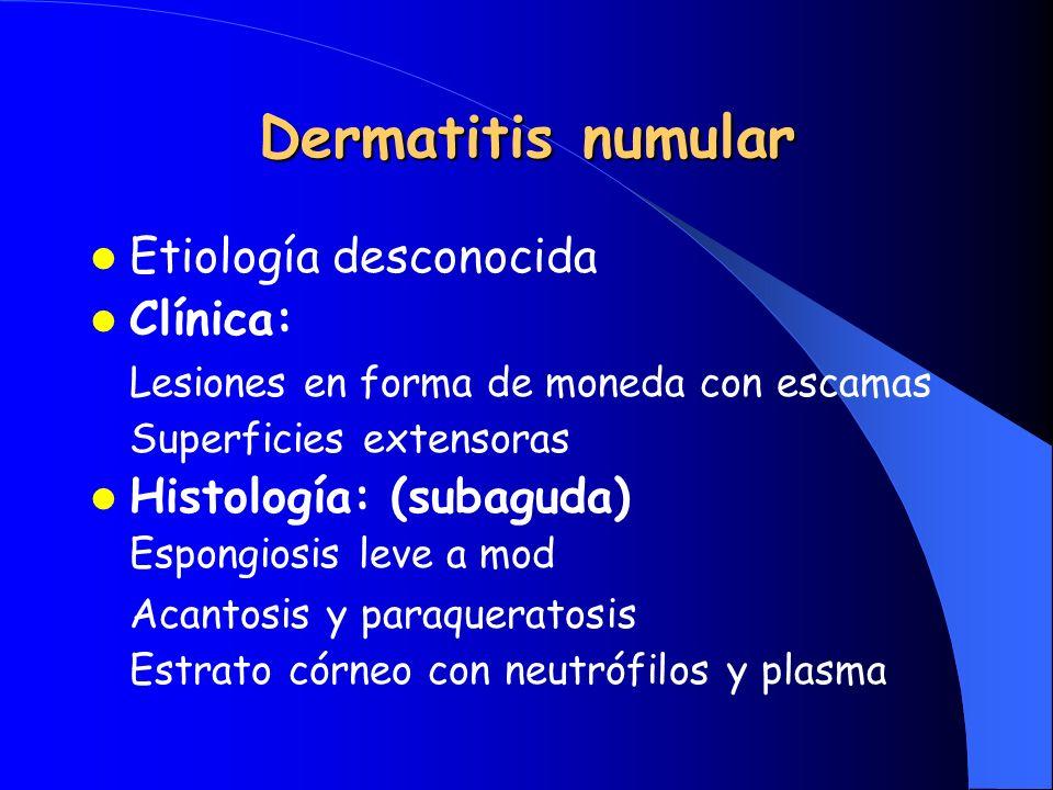 Dermatitis numular Etiología desconocida Clínica: Lesiones en forma de moneda con escamas Superficies extensoras Histología: (subaguda) Espongiosis le