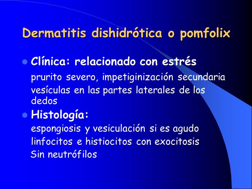 Dermatitis dishidrótica o pomfolix Clínica: relacionado con estrés prurito severo, impetiginización secundaria vesículas en las partes laterales de lo