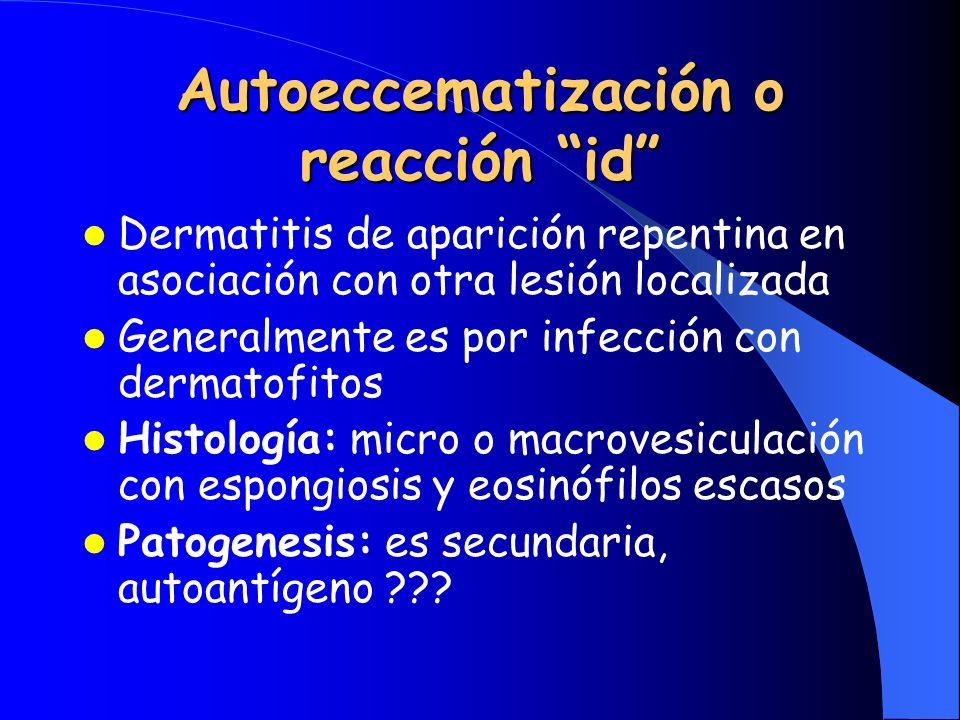 Autoeccematización o reacción id Dermatitis de aparición repentina en asociación con otra lesión localizada Generalmente es por infección con dermatof