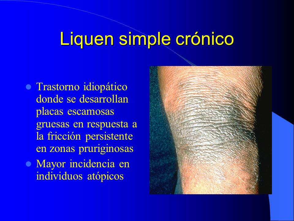 Liquen simple crónico Trastorno idiopático donde se desarrollan placas escamosas gruesas en respuesta a la fricción persistente en zonas pruriginosas