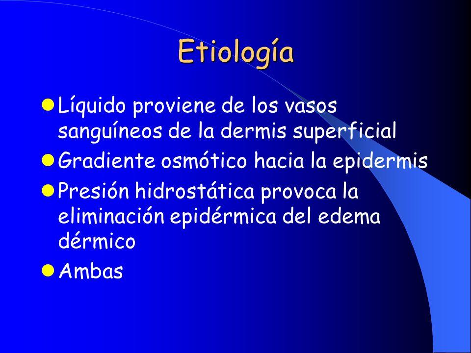 Etiología Líquido proviene de los vasos sanguíneos de la dermis superficial Gradiente osmótico hacia la epidermis Presión hidrostática provoca la elim