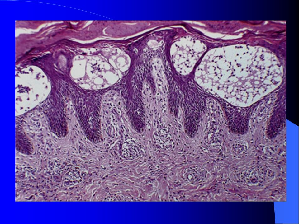 Dermatitis espongiótica subaguda Hiperplasia epitelial psoriasiforme (leve) Engrosamiento de queratinocitos (acantosis) Formación mínima de vesículas Infiltrado perivascular leve