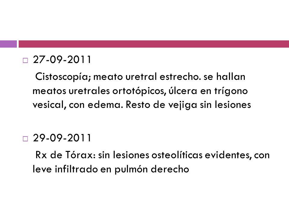 27-09-2011 Cistoscopía; meato uretral estrecho. se hallan meatos uretrales ortotópicos, úlcera en trígono vesical, con edema. Resto de vejiga sin lesi