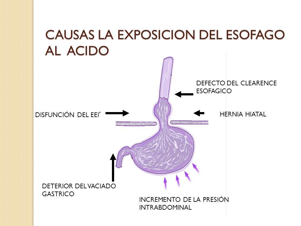 CAUSAS LA EXPOSICION DEL ESOFAGO AL ACIDO DEFECTO DEL CLEARENCE ESOFAGICO DISFUNCIÓN DEL EEI HERNIA HIATAL DETERIOR DEL VACIADO GASTRICO INCREMENTO DE