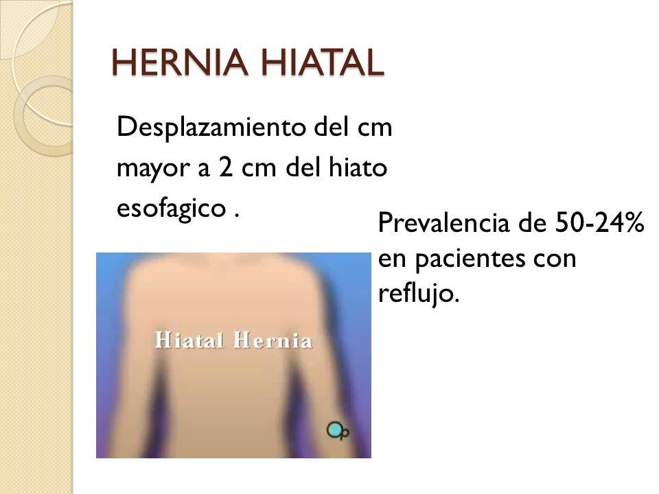 HERNIA HIATAL Desplazamiento del cm mayor a 2 cm del hiato esofagico. Prevalencia de 50-24% en pacientes con reflujo.