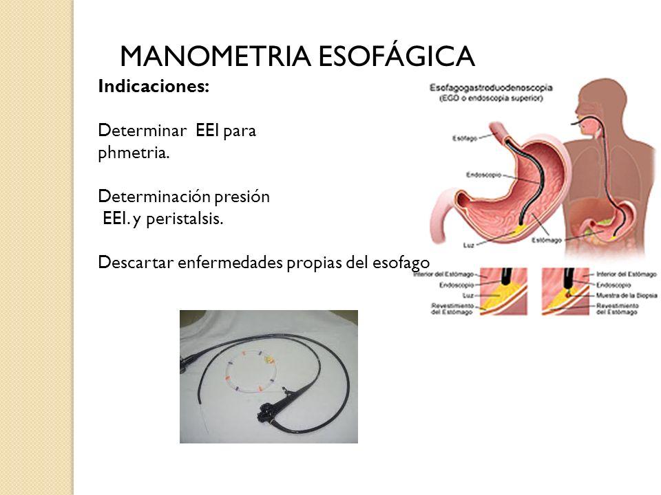MANOMETRIA ESOFÁGICA Indicaciones: Determinar EEI para phmetria. Determinación presión EEI. y peristalsis. Descartar enfermedades propias del esofago
