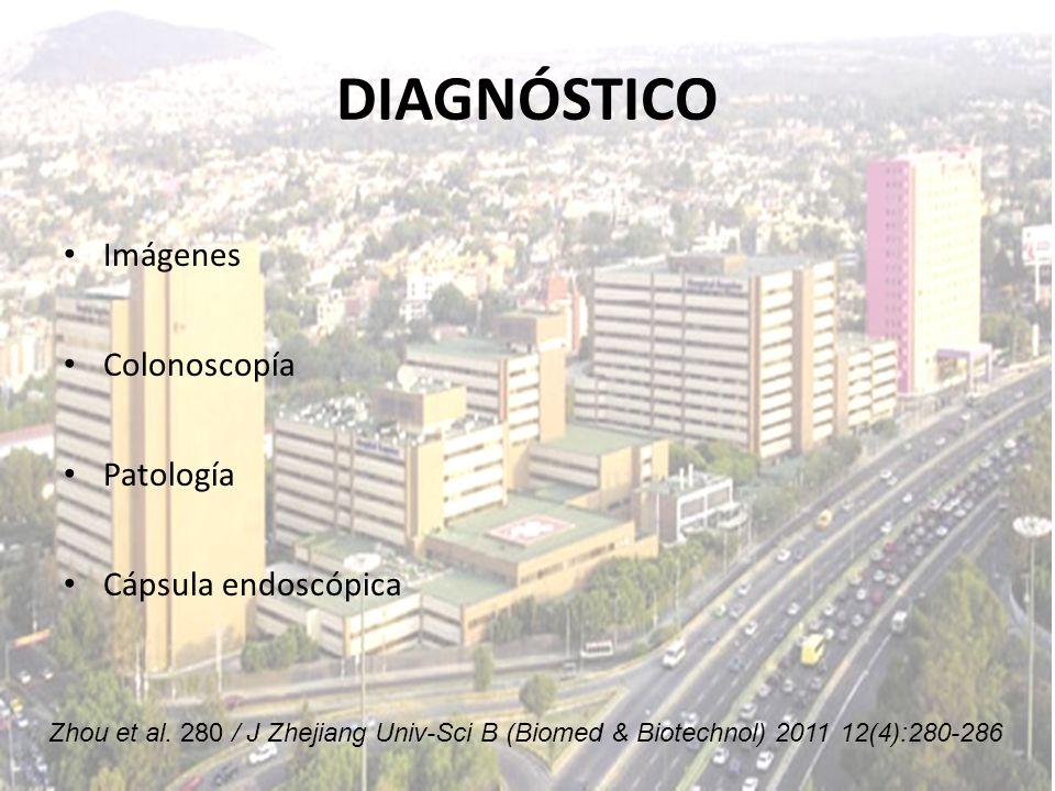 DIAGNÓSTICO Imágenes Colonoscopía Patología Cápsula endoscópica Zhou et al. 280 / J Zhejiang Univ-Sci B (Biomed & Biotechnol) 2011 12(4):280-286