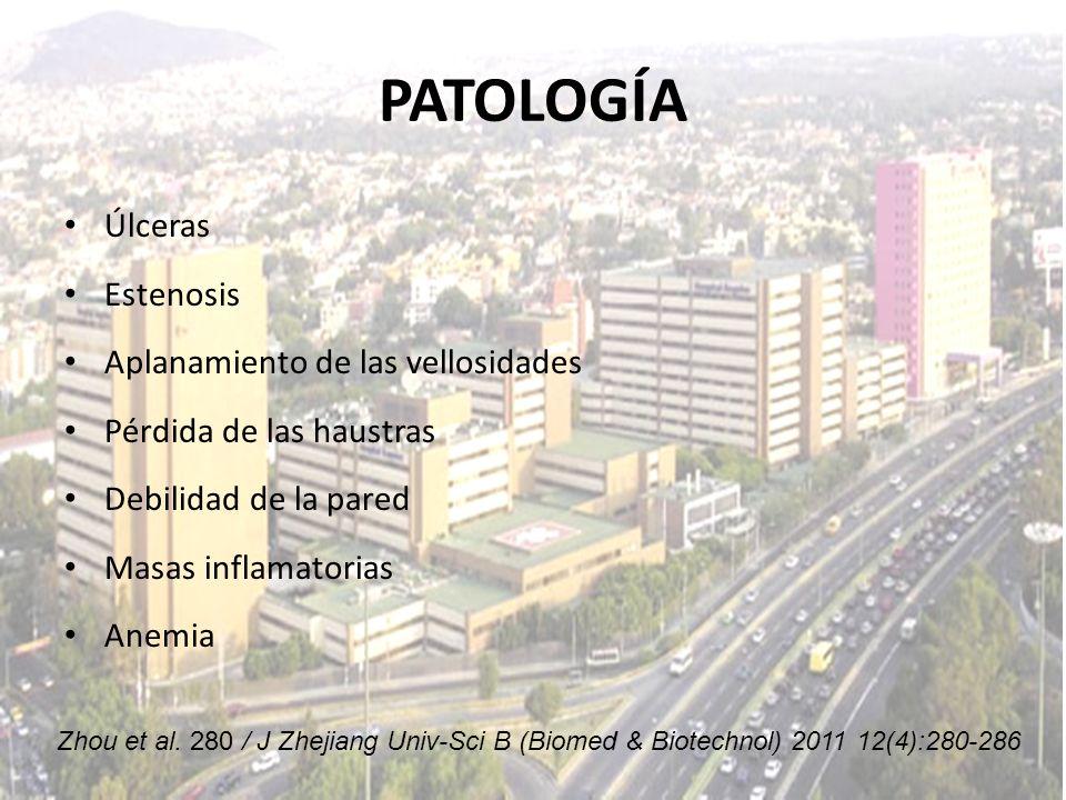 PATOLOGÍA Úlceras Estenosis Aplanamiento de las vellosidades Pérdida de las haustras Debilidad de la pared Masas inflamatorias Anemia Zhou et al. 280