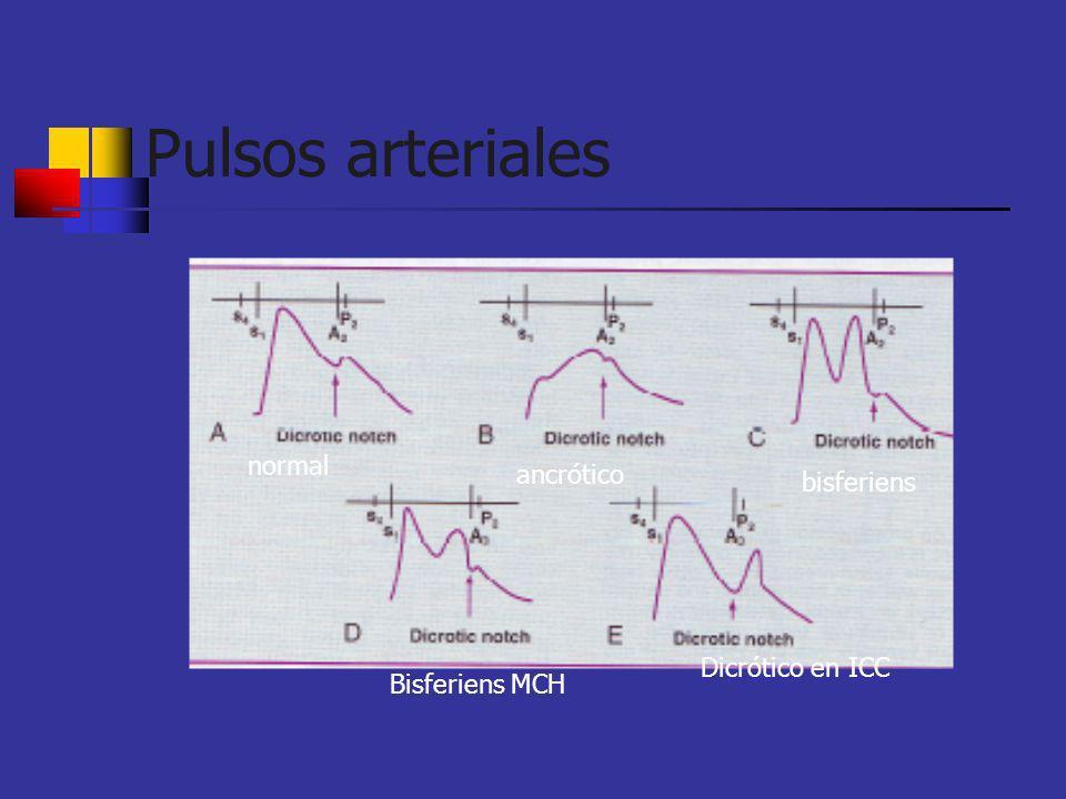 normal ancrótico bisferiens Bisferiens MCH Dicrótico en ICC
