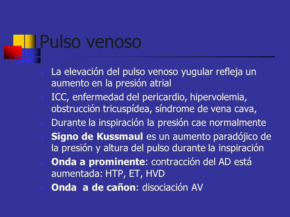 Pulso venoso La elevación del pulso venoso yugular refleja un aumento en la presión atrial ICC, enfermedad del pericardio, hipervolemia, obstrucción t