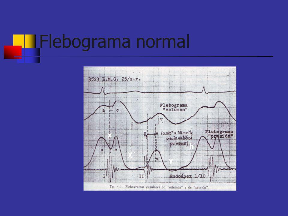 Flebograma normal x X´ y h