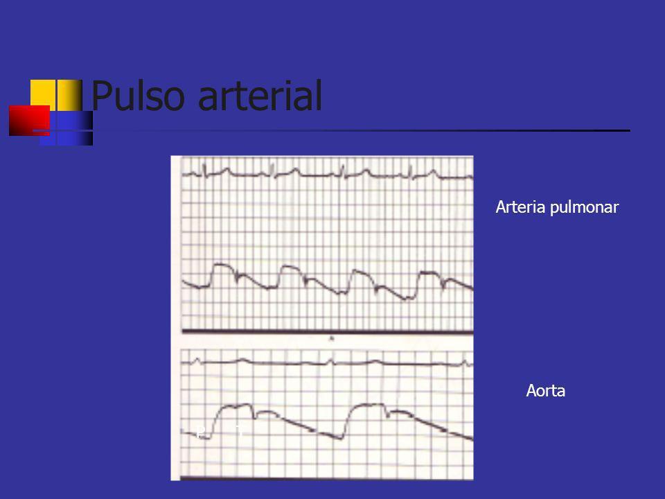 Pulso carotídeo El gráfico del pulso muestra dos deflecciones positivas en sístole; el primer hombro es la onda de percusión y el segundo la onda Tidal Onda de percusión es por la llegada del impulso del VI Onda Tidal es el eco de la parte superior del cuerpo