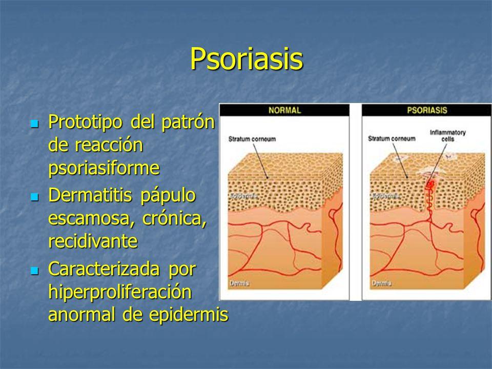 Psoriasis Prototipo del patrón de reacción psoriasiforme Prototipo del patrón de reacción psoriasiforme Dermatitis pápulo escamosa, crónica, recidivan