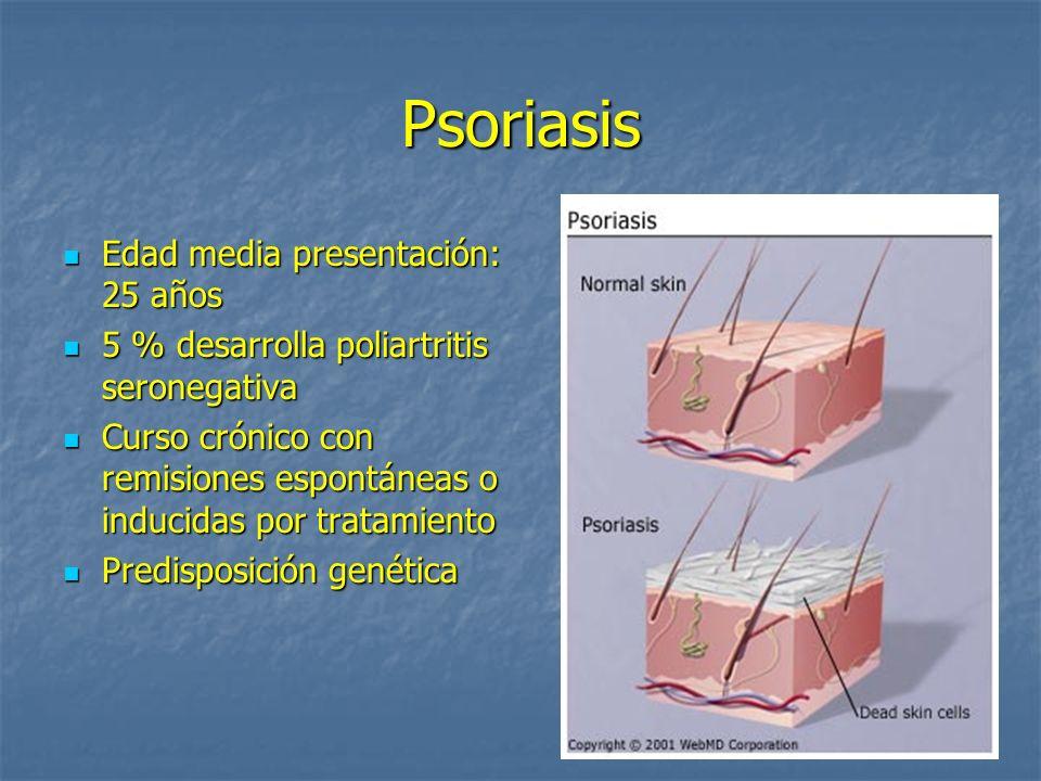 Psoriasis Edad media presentación: 25 años Edad media presentación: 25 años 5 % desarrolla poliartritis seronegativa 5 % desarrolla poliartritis seron