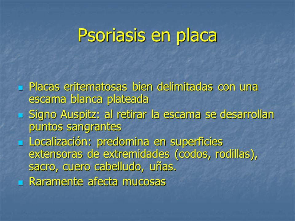 Psoriasis en placa Placas eritematosas bien delimitadas con una escama blanca plateada Placas eritematosas bien delimitadas con una escama blanca plat